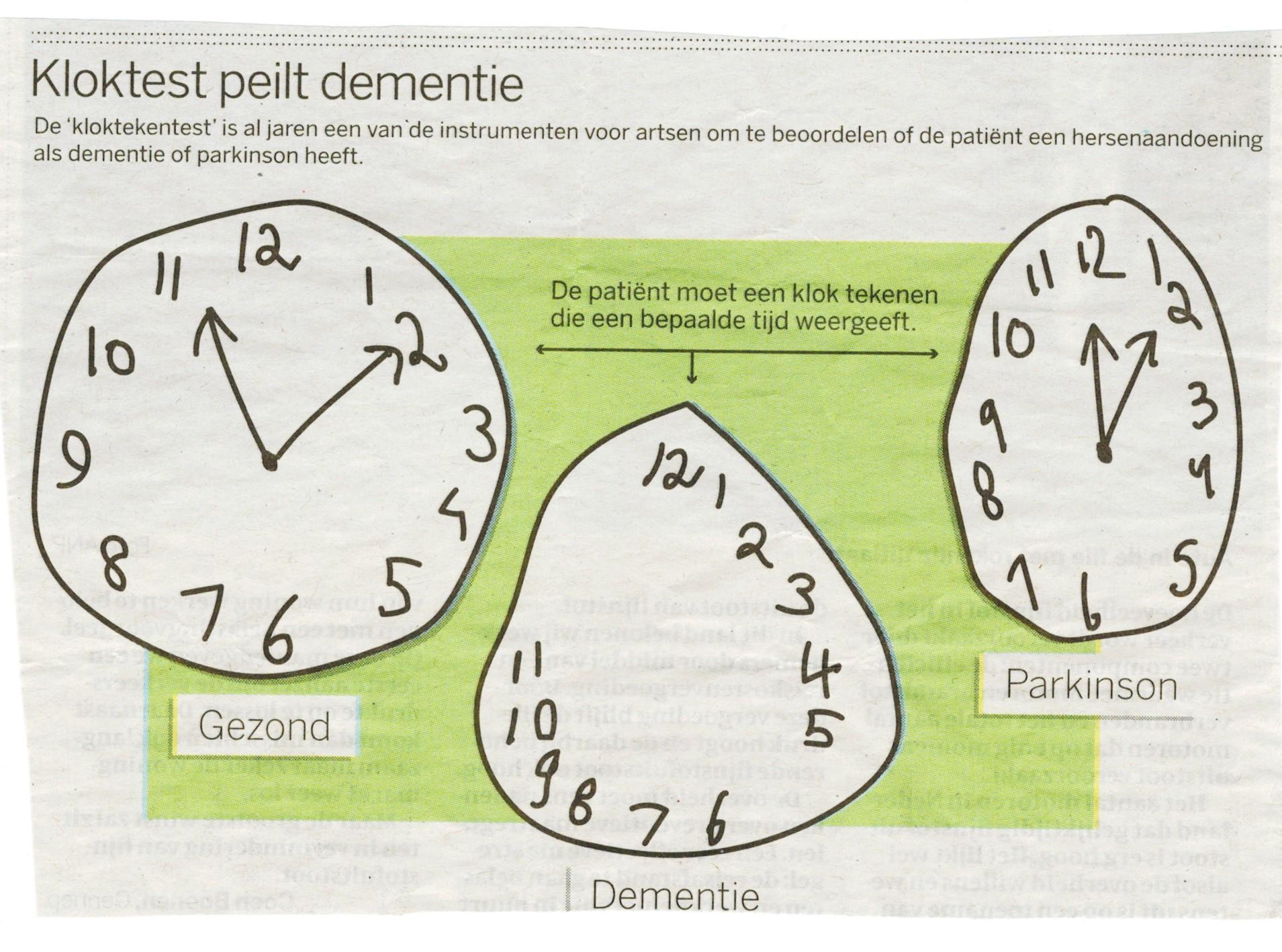 tekenen van dementie